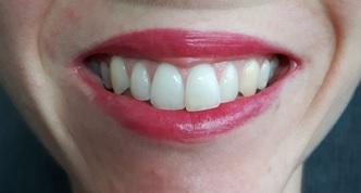 Tests et résultats des rouges à lèvres Yves Rocher pour les fêtes !